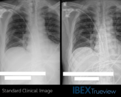 Sample image pair from the ITU study.